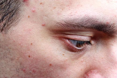 poor hygiene acne boy man